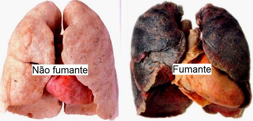 Dieta se deixado fumando