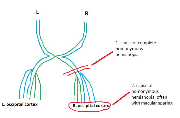 Homonymous Hemianopia Bitemporal Hemianopia - Barts Wiki