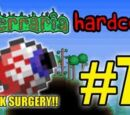 Terraria HC! - Part 7 (LASIK SURGERY!)